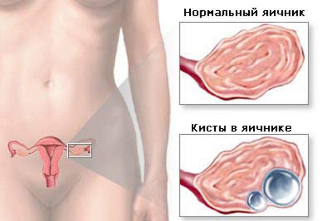 Эндометриозная кисты на яичнике