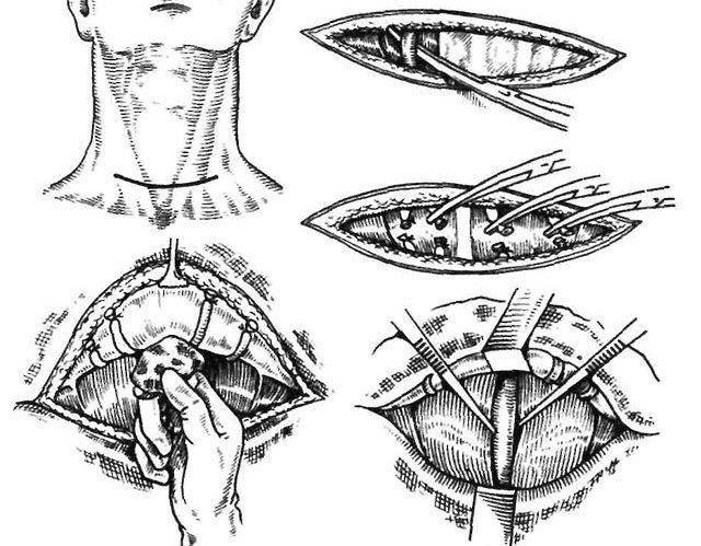 Этапы струмэктомии на щитовидной железе