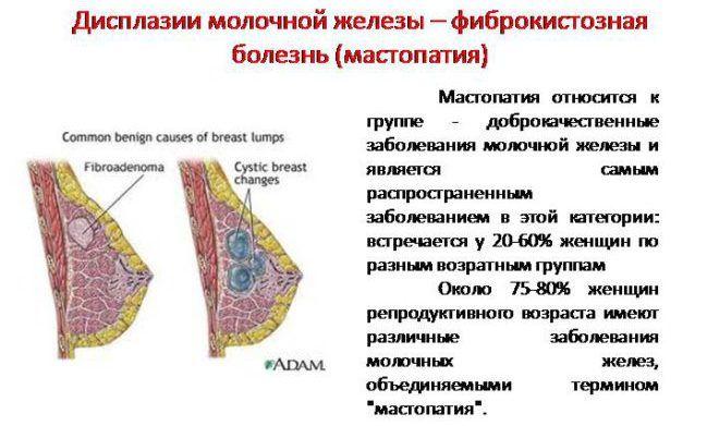 Фиброзно-кистозная мастопатия молочной железы код по мкб 10