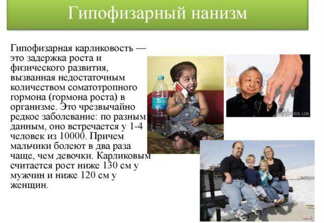 Pituitary dwarfism (dwarfism) — what is it?