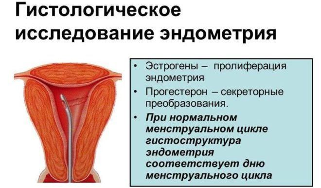 Гистероскопия менструальный цикл