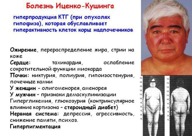 Иценко-Кушинга