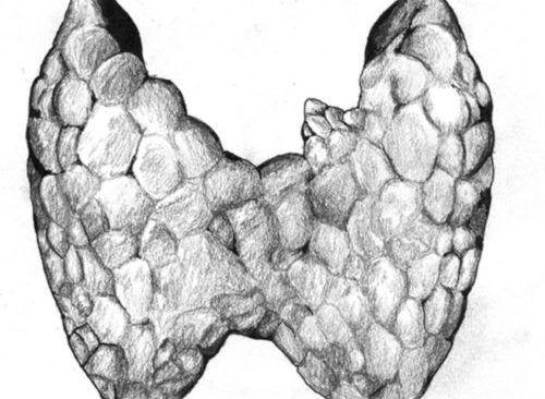 Кальцинаты в щитовидке