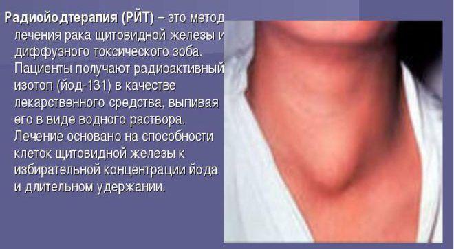 Можно пятна при воспалении щитовидной железы диагностика и лечение надеемся, что