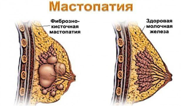 Узловая мастопатия рекомендации