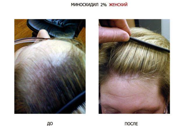 Hair fall treatment at home — 7 remedies that work! - Read ...
