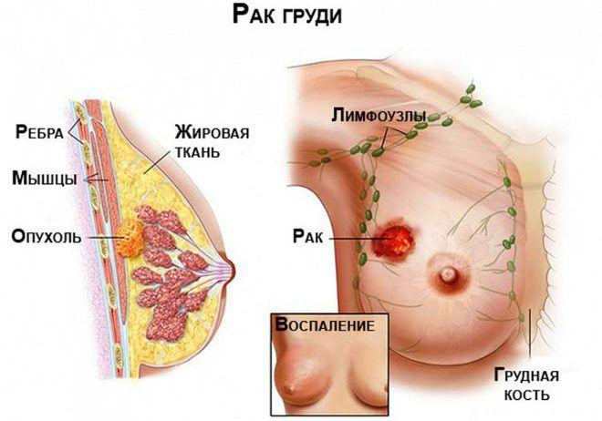 Наличие раковой опухоли на груди