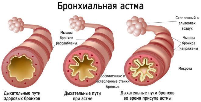 Гормони при алергії — які препарати колоти » журнал здоров'я iHealth 1