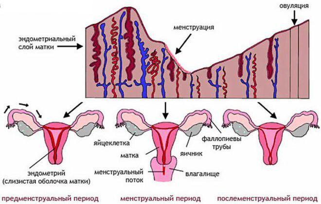 Обильные болезненные менструации