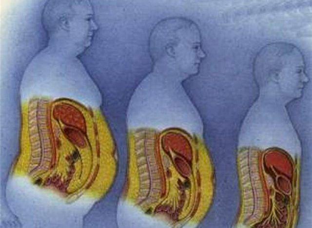Ожирение поджелудочной железы