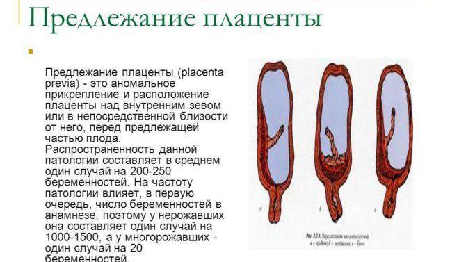 Плацентарное предлежание