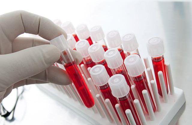 Подготовиться к сдаче крови на гормоны