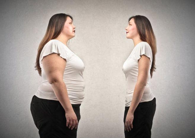 Похудение после ожирения