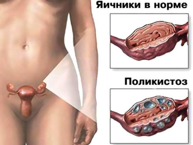 ГСПГ гормон у женщин и мужчин - что это такое?