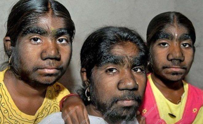 Повышеная волосатость