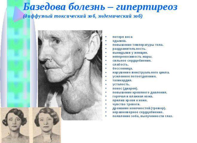 Базедова болезнь связана с