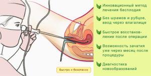 Проведение процедуры гистероскопии