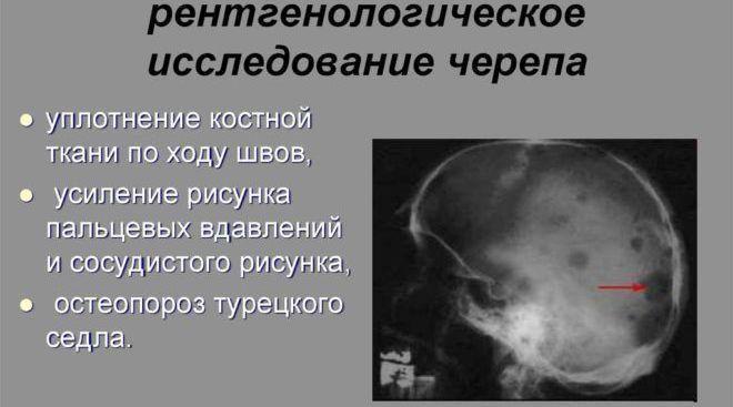Рентгенографическое исследование черепа