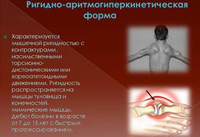 Ригидно-аритмогиперкинетическая форма