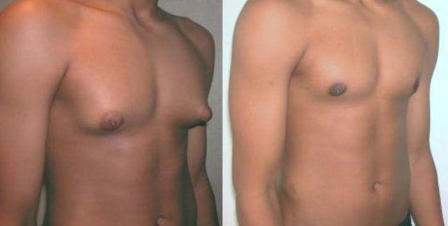 Рост груди у мужчин
