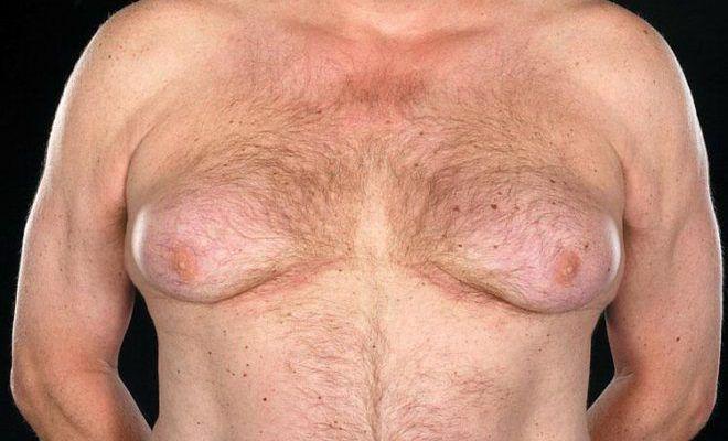 Рост молочных желез у мужчин