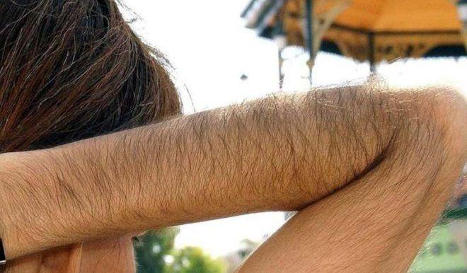 Рост волос на теле у женщин