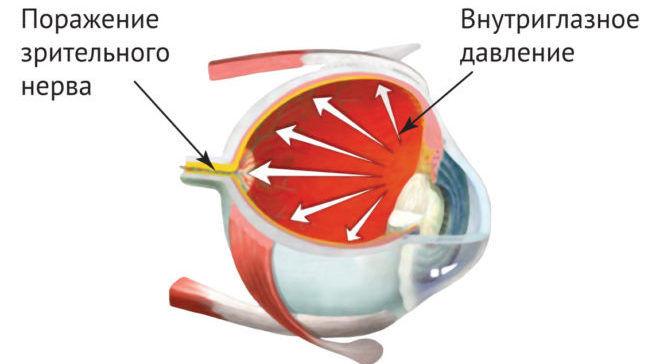 Как в домашних условиях снизить глазное давление в домашних условиях