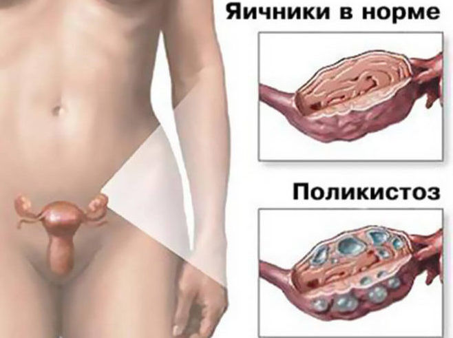 Синдром поликистозных яичников (спкя)