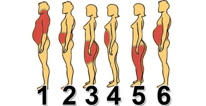 Смешанный тип ожирения