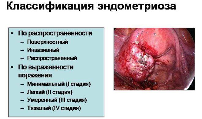 Стадии эндометриоза