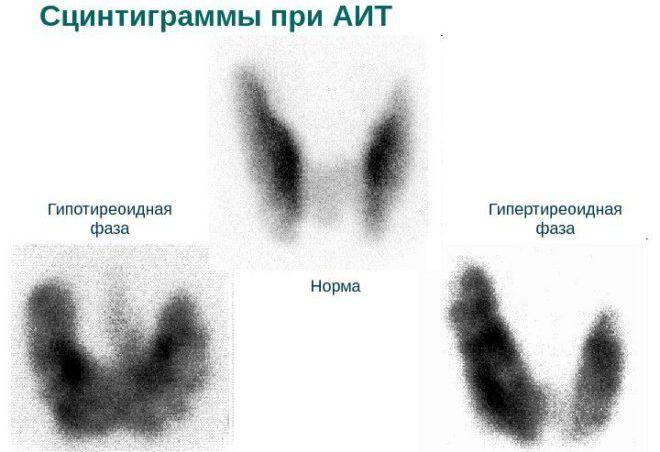 Сцинтиграммы при АИТ