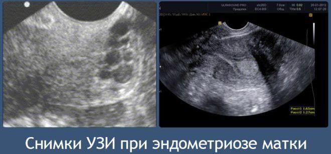 УЗИ эндометриоза