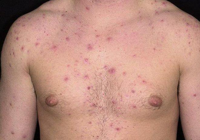 Угри на коже и подкожных тканях