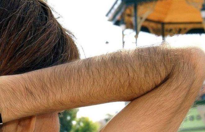 Усиленный рост волос на теле женщины