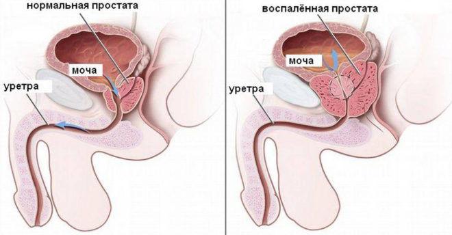 Воспалённая простата