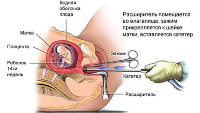 Выскабливание при замершей беременности