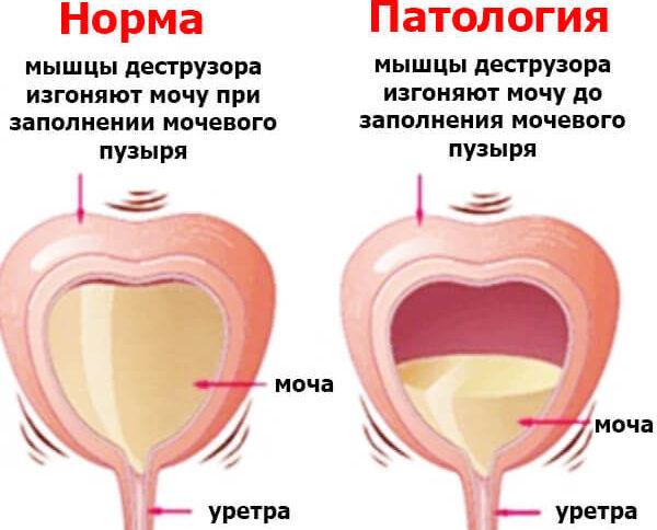Заболевания мочевого пузыря