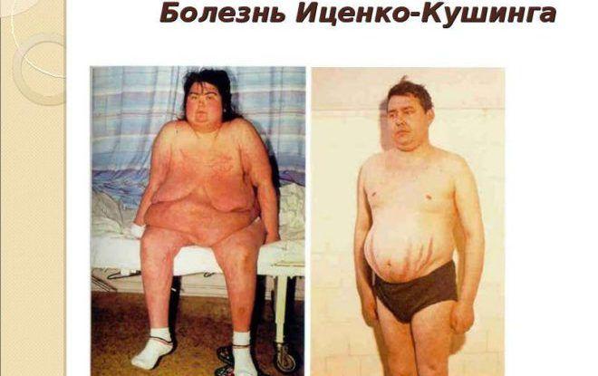 Болезни Иценко-Кушинга