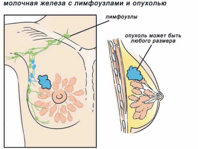 Рак молочной железы появляется вследствие нарушений гормонального баланса