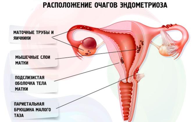Эндометриоз правого и левого яичников - что это такое, симптомы и лечение