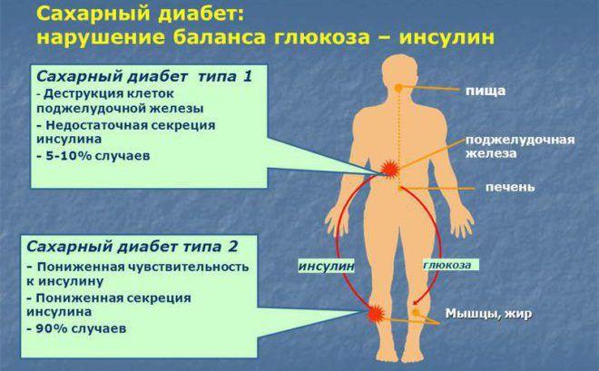 Сахарный диабет, причина диабетической стопы