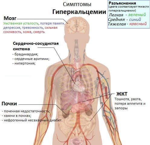 Что такое гиперкальциемия, симптомы и лечение 2