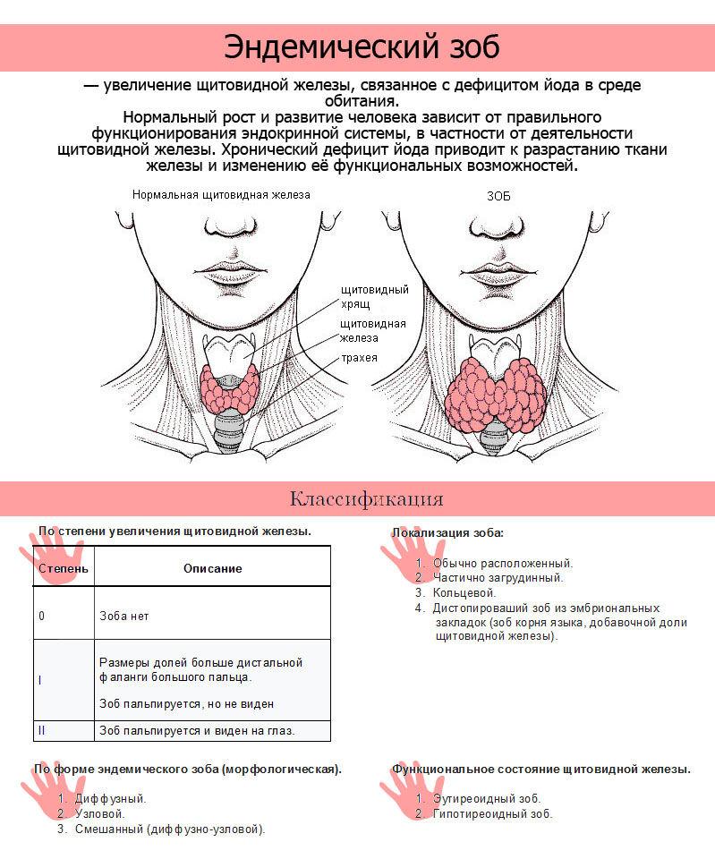 Эндемический ЗОБ — увеличенная щитовидная железа 2