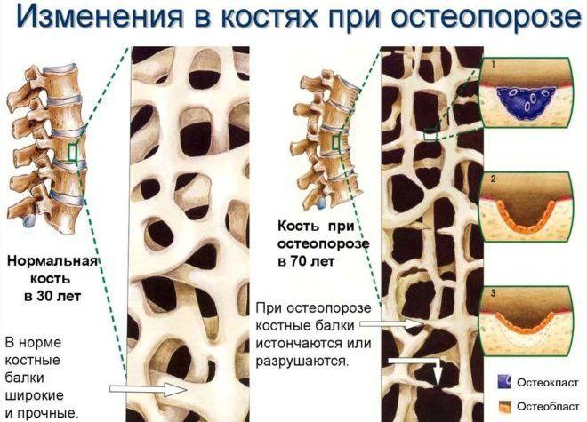Изменения в костях при остеопорозе