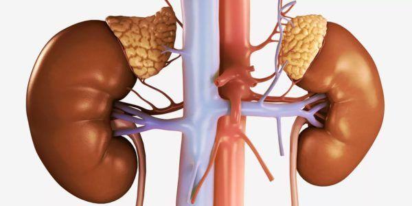 Кортикостерома надпочечника