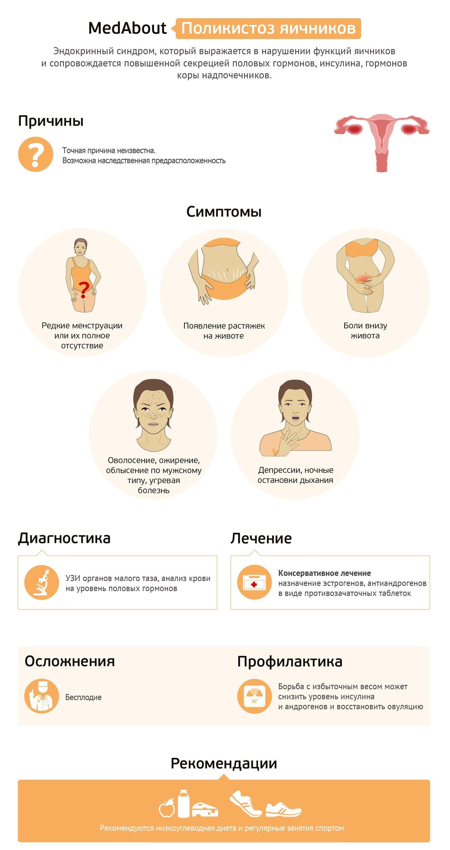 Инфографики все о поликистозе яичников