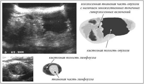 Изоэхогенное образование щитовидной железы Оперативное лечение