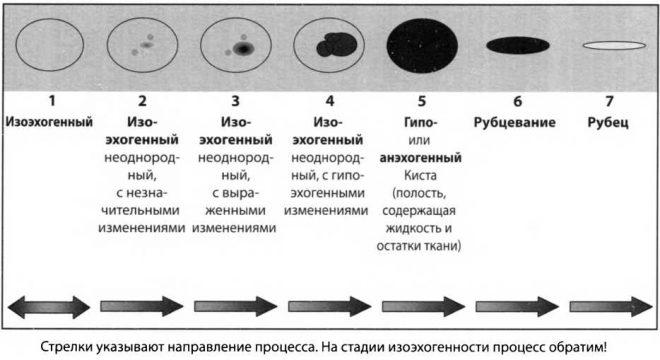 Изоэхогенные узлы