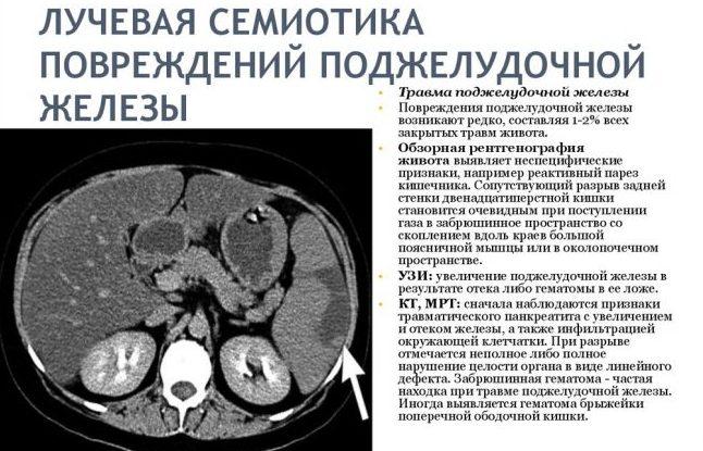 Тотальное увеличение поджелудочной железы