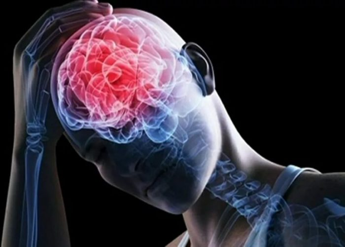 Травмы головы